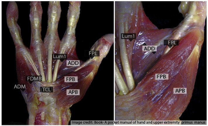thenar muscles surgical anatomy of hand