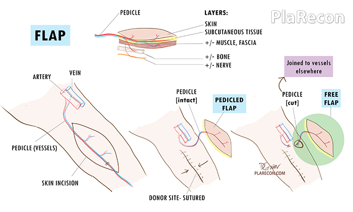 What is a Flap? PlaRecon (Plastic Surgery India)