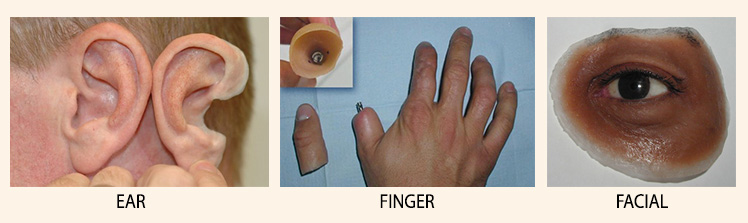 Silicone Ear, Finger, Facial Prosthesis- Plarecon- aesthetic